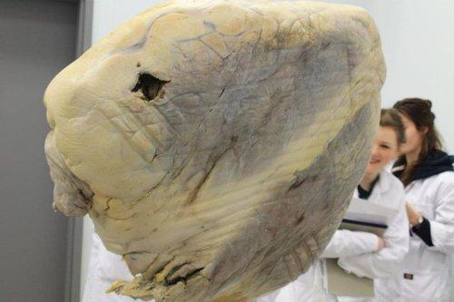تصاویر قلب نهنگ